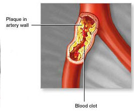 plaques in arteries